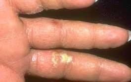 dermatita-dishidrotica