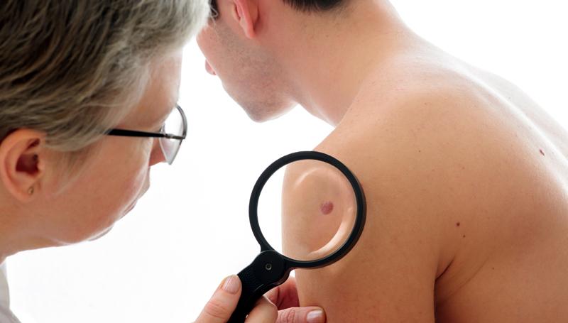 Tratament cancer de piele