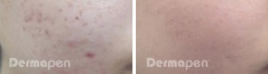 before-after-acne-scar-pores-female