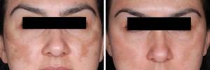 dermapen-before-after-las-vegas-1-768x255